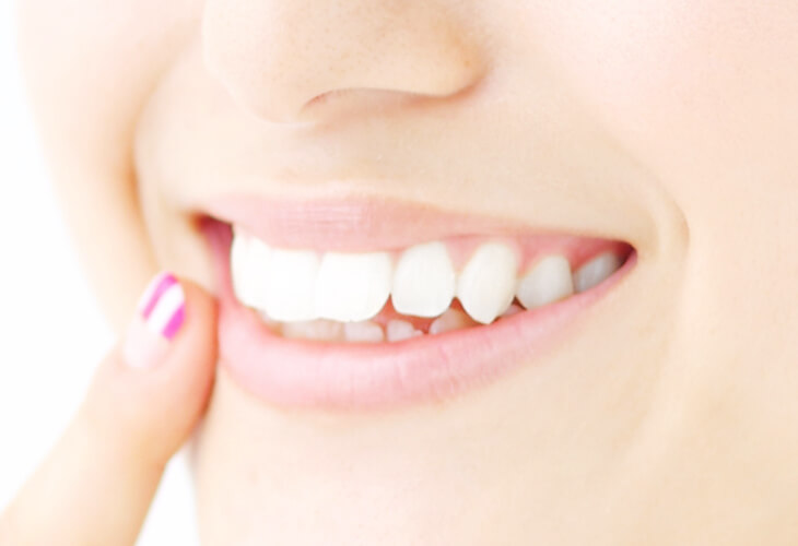 前歯をより綺麗に、銀歯を白い歯に