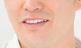 差し歯をきれいな 歯にしたい