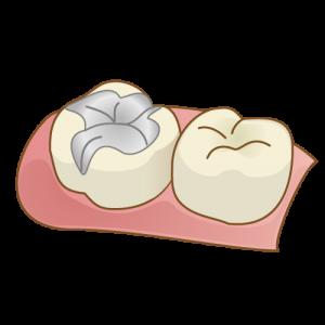 銀歯による二次むし歯のリスク