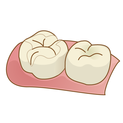 二次虫歯の対処法